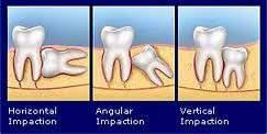 pencabutan-gigi-bungsu-dengan-operasi-bedah-mulut-odontektomi